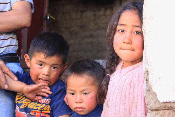 寒さと乾燥で、子ども達はみんな頬が赤くかぶれています