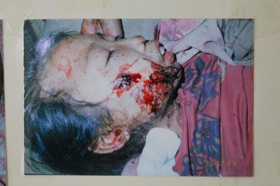 シエンクアン県病院で治療を受ける不発弾被害者
